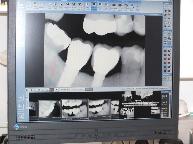 Intraorales digitales Röntgen