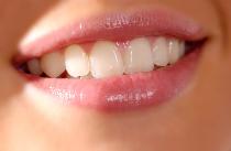 Gebleichte Zähne
